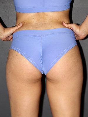 Rarr designs Cornflower BRAZIL Fit Scrunchie Bum Shorts