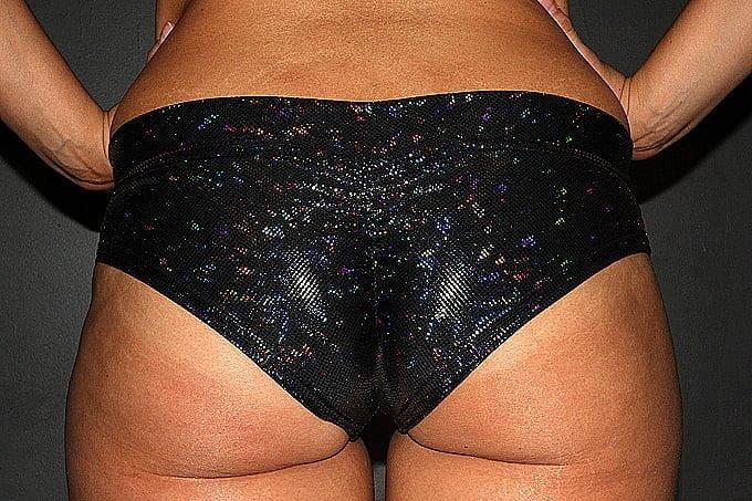 Black Shattered BRAZIL Fit Scrunchie Bum Shorts
