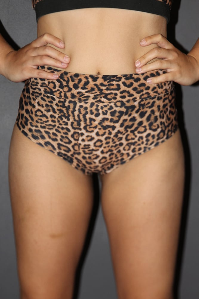 ANIMAL High Waisted BRAZIL Scrunchie Bum Shorts